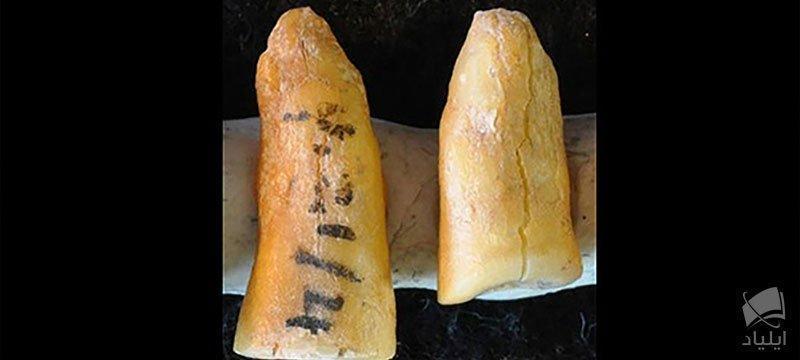 قدیمی ترین دندان پر شده جهان!